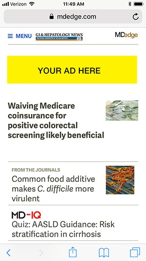 banner-ads-mobile300x534